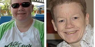 STORE ENDRINGER: Adéle Marie Moe (43) gikk fra å være overvektig til å få anoreksi. Nå har hun endelig kontroll på spiseforstyrrelsene.