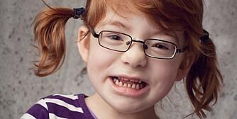 GLADJENTE: Tuva (6) er en av 100 personer i verden som lider av det ekstremt sjeldne Coffin-Siris syndrom.