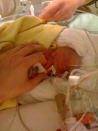 LAGT I KUVØSE: Etter fødselen blir lille Lucas lagt i kuvøse. Først etter to døgn får mamma Asja hilse på gutten sin.