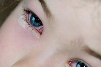 ØYEKATARR HOS BARN: – Barn med øyekatarr kan gå i barnehagen. Smittefrykten er sterkt overdrevet, mener lege.