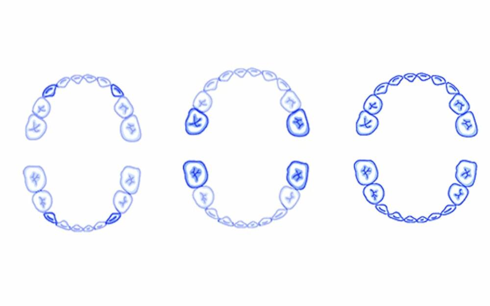 TENNER OG BABY: Når babyen er 16-20 måneder fylles mellomrommet mellom de fire fortennene og de første jekslene av hjørnetenner. I 24-30 måneders alderen fylles munnen med de bakerste jekslene, og når barnet er fylte tre år skal de fleste tennene normalt ha kommet på plass.