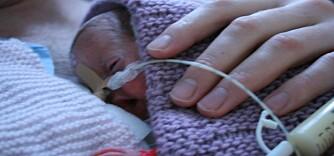 550 GRAM: Lille Eirill var bare 19 cm lang og veide kun 550 gram da hun ble født.
