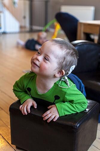 MAGNETER PÅ HODET: Implantatet Lauritz  har fått for å kunne høre, cochlea-implantat, medfører at han må ha magneter festet til hodet.