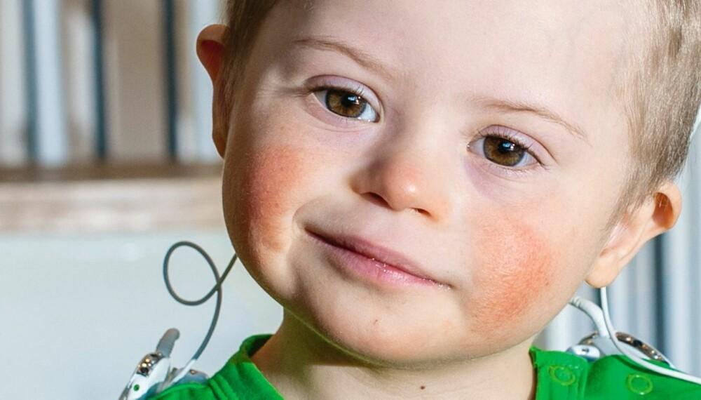 SKJULTE HANDIKAP: Lauritz Østbøll er ikke helt som andre 3-åringer. Han har Downs, og han er døv.