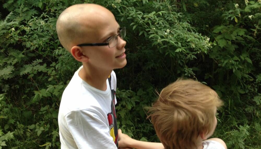 HUDSYKDOM: Da Petter plutselig mistet håret, ble familien livredde. Heldigvis er hudsykdommen alopecia ikke farlig.