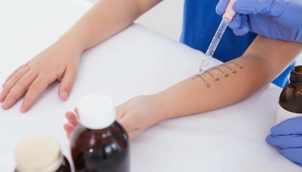 BARN MED ALLERGI: Kontakt lege ved mistanke om allergi, så kan en prikktest være en av flere måter å påvise mulige allergier. FOTO: Getty Images.