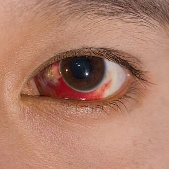SPRENGT BLODKAR: Røde øyne kan se litt skremmende ut, men det er som oftest helt ufarlig.