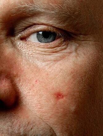 Endringer i kroppen som vedvarer, som for eksempel sår som ikke blir borte, bør tas alvorlig. Her et tilfelle av hudkreft.