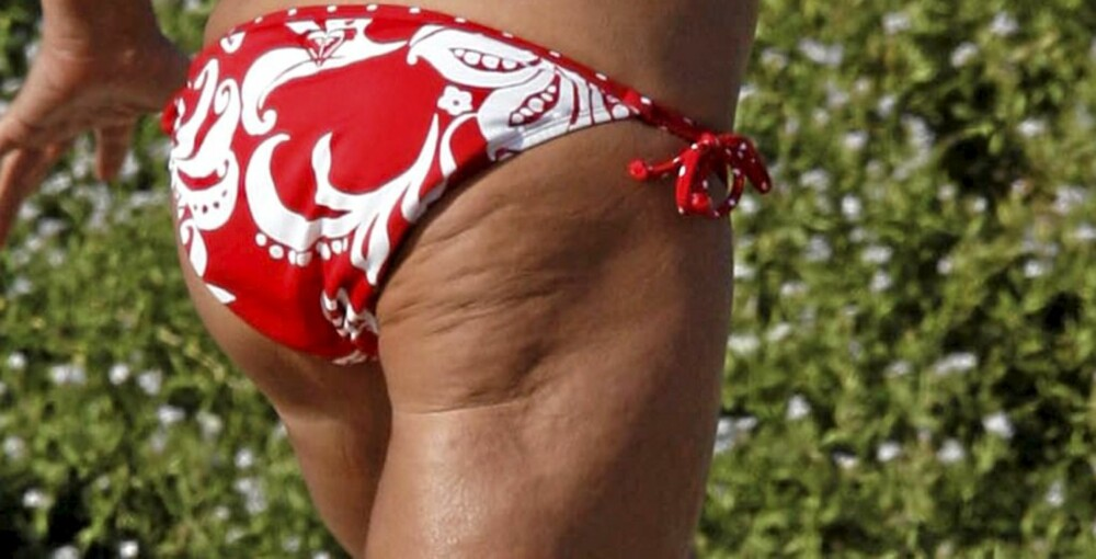 LETT CELLULITT: Når det gjelder cellulitter er det ikke vekta det kommer an på. Man kan være syltynn og fortsatt ha cellulitter.