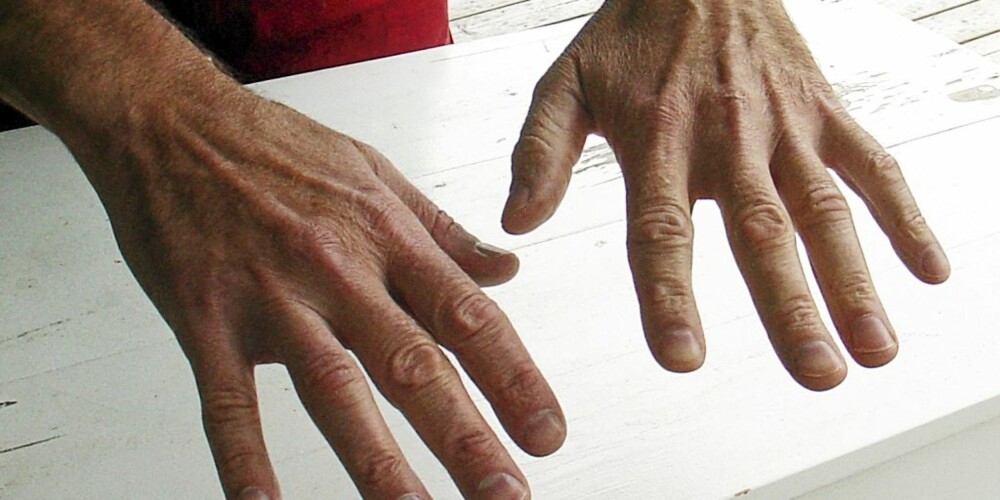 RENE HENDER: Hendene er rene og myke etter at vi brukte matolje til å fjerne malingen.