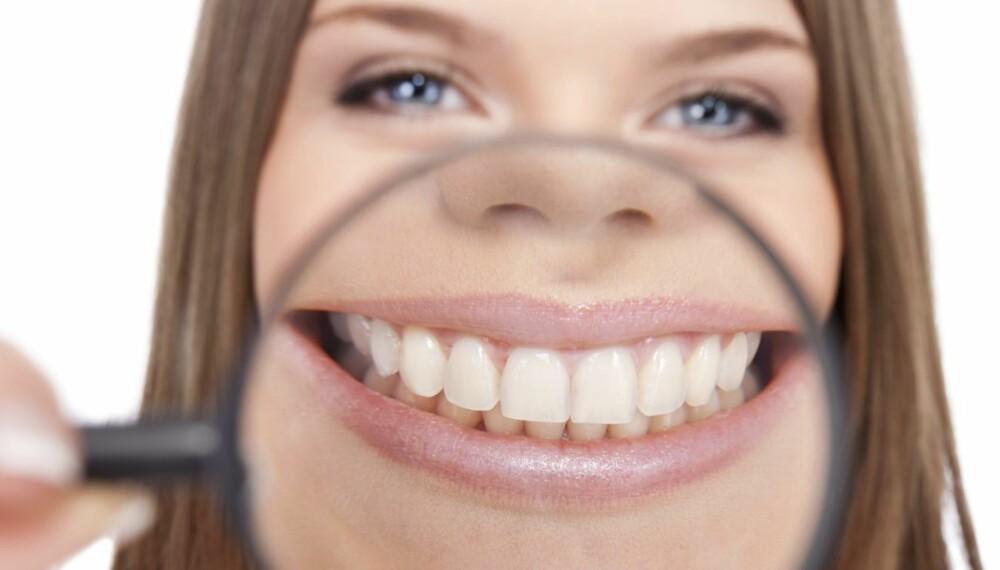 AVSLØRENDE: Tennene dine kan avsløre mye om risikoen for å utvikle livsstilssykdommer.