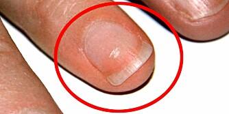NEGLENE: Har du negler som er hvite, blå, sprukne eller ruglete? Sjekk hva neglenes utseende kan fortelle om helsetilstanden din.