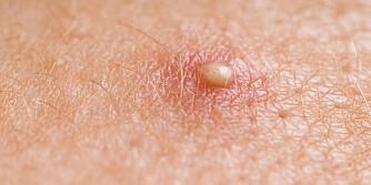 INNGRODDE HÅR: Kan se ut som en kvise som ikke kan klemmes, men det er hår som ikke kommer seg ut til hudoverflaten og som kveiler seg opp inne i huden. ILLUSTRASJONSFOTO: Colourbox
