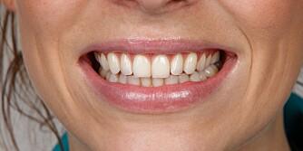 HVITE TENNER: Lurt på hvorfor noen har hvitere tenner enn andre? FOTO: Petter Berg