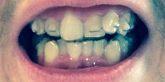 KNOTTER: Anders Tretteteig (23) har knotter på tennene som hjelper til med tannforflytningen.