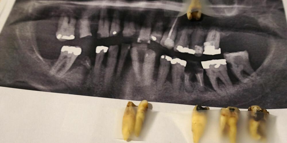 MÅTTE TREKKE: Svein Ivars tenner satt så løst at de nesten falt ut av seg selv. Tannlege Carl-Henrik Gullaksen forteller at han mest sannsynlig må trekke alle tennene sine.
