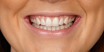 PUSS TENNENE HVER DAG: Ekspertene anbefaler å pusse tennene to ganger i løpet av dagen. FOTO: Petter Berg