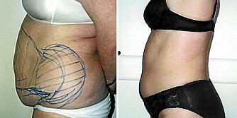 BUKPLASTIKK: Bildene er tatt før og etter operasjon.