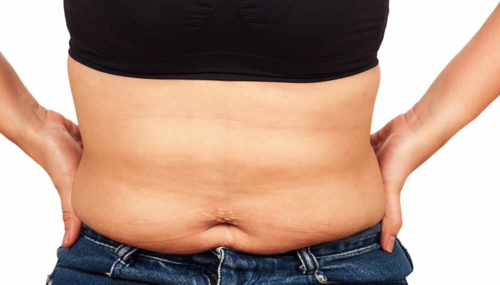 BORT MED MAGEFETTET: Mye magefett øker risikoen for hjerteinfarkt. ILLUSTRASJONSFOTO: Colourbox