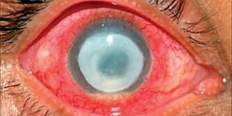 BAKTERIER: Den forferdelige tilstanden kalles Acanthamoeba keratitis, og skyldes amøber som tar seg inn i øyet på jakt etter bakterier de kan spise.