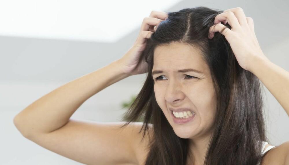 KLØE I HODEBUNN: Det er ubehagelig når det klør i hodebunnen, og du bør alltid få legen til å se på plagene hvis de vedvarer.