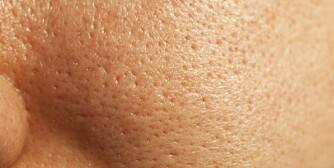 FÅ PERFEKT SOMMERHUD: Mange som sliter med grov hud vet ikke hvordan de skal gå fram for å bli kvitt problemet. Det er imidlertid mange metoder som virker.