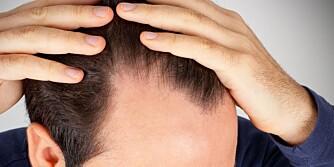 HÅRTAP: Håret vårt er sterkt knyttet til status, selvfølelse og identitet. Derfor kan det bli smertefullt å miste det. En følelse av skam kan oppstå.