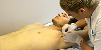BOTOX MOT SVETTE: Overdreven svette rammer cirka 3 % av befolkningen. Ifølge hudlege Kjetil Guldbakken er botox den mest effektive behandlingsmetoden som gir langvarig effekt mot svette. FOTO: Jenny Mina Rødahl