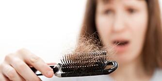 ALOPECIA: Når man får Alopecia løsner hårene flekkvis.
