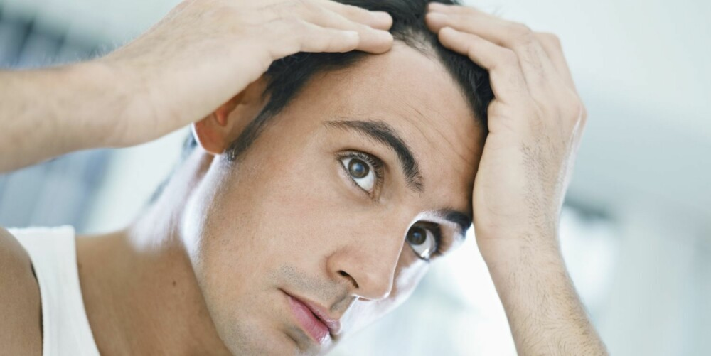 BELASTNING: - Vi må ikke bagatellisere håravfall, det kan være en stor belastning for dem det gjelder, sier hudlege Ylva Ohlsson.