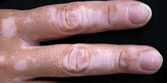 VITILIGO: Hudsykdommen Vitiligo kjennetegnes ved pigmentfrie, hvite flekker i huden.