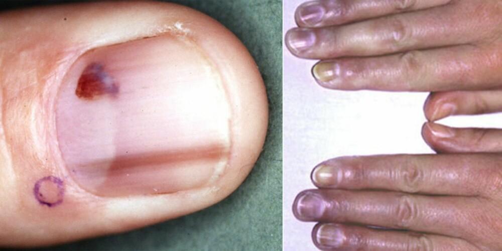 Blåaktig misfarging på neglene.