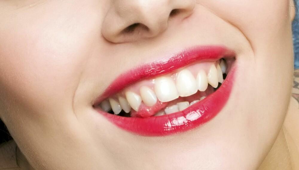 BLEMMER: Rundt 20 prosent av oss får munnskold, som varer i 10-14 dager. Det eneste du kan gjøre, er å lindre når plagene kommer.