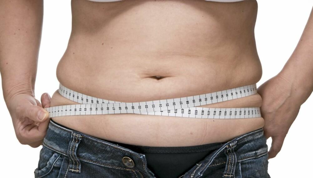 FARLIG FETT: Mye fett på magen regnes som ekstra farlig fordi det ofte knyttes til diabetes 2 og hjertesykdommer.
