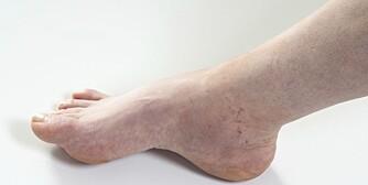 OPPHOVNET: Hovne bein kommer av væskeansamling i beina og er veldig vanlig, og vanligvis skyldes det godartede tilstander.