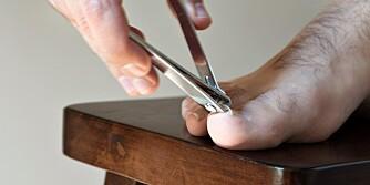 IKKE KLIPP FOR KORT: Hvis neglen er klippet for kort, får du ofte vondt og du ser neglsengen utenfor neglen. ILLUSTRASJONSFOTO: Colourbox