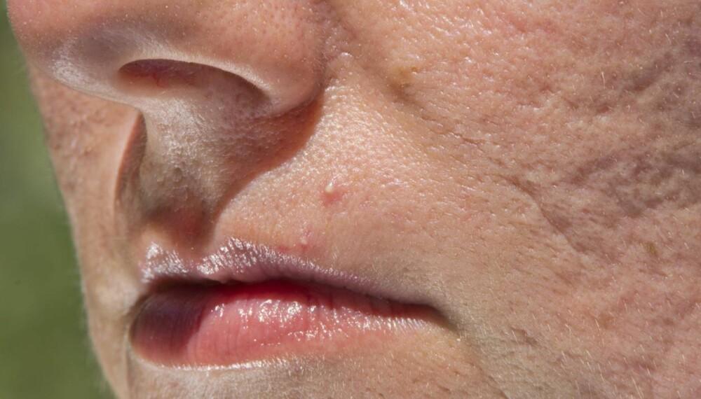 KVISER I VOKSEN ALDER: Nei, det er ikke bare ungdom som har kviser og akne. Heldigvis finnes det gode råd for renere hud. ILLUSTRASJONSFOTO: Thinkstock
