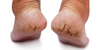 SMERTEFULLE: Sprekker i hælen er vondt. Uten behandling er det lettere å bli smittet av sopp og virus.