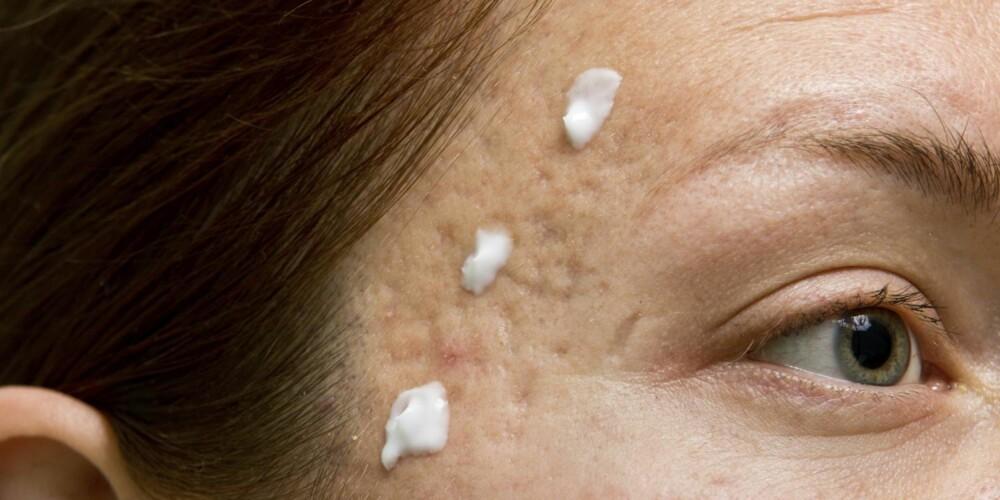 PLEI HUDEN: Finn frem til gode og pleiende hudkremer og andre hudprodukter, gjerne uten parfyme, som passer til huden din. ILLUSTRASJONSFOTO: Thinkstock