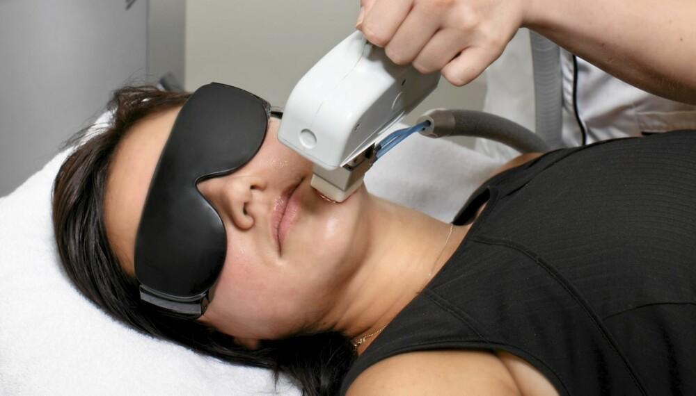 LASER: Gjentakende laserbehandlinger med IPL er en av mulighetene for å fjerne bart eller skjeggvekst.