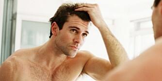 MANNLIG SKALLETHET: Medikamentell behandling, dersom man starter behandlingen tidlig, kan i dag bremse arvelig, aldersrelatert hårtap hos mange menn.