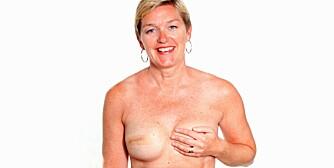 LITE ARR: Et lite arr er alt som avslører at Randi Sæter har fått et «nytt» bryst.