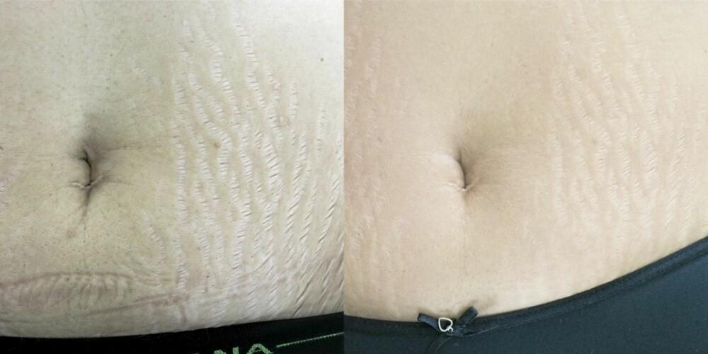 FØR OG ETTER: Fiskekollagen skal være årsaken til de reduserte gropene i huden (til høyre) og de jevnere overgangene mellom den normale huden og strekkmerkerne