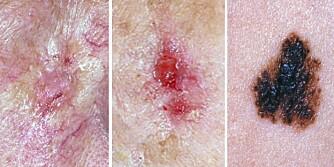 VANLIGST: De tre vanligste typene hudkreft er (f.v.) basalcellekarsinom, plateepitelkarsinom og føflekkreft eller malignt melanom.