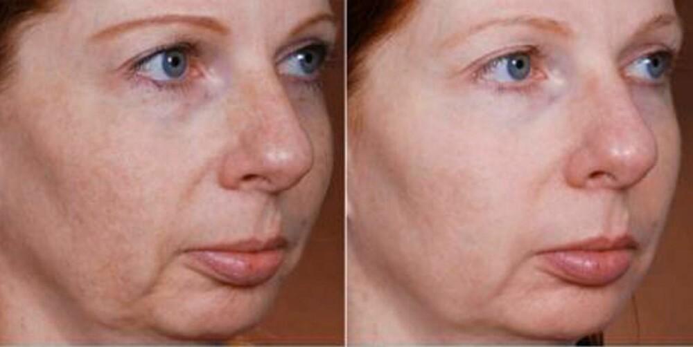 LASERMETODER: Pasient før og etter to behandlinger med Fraxel-laser.