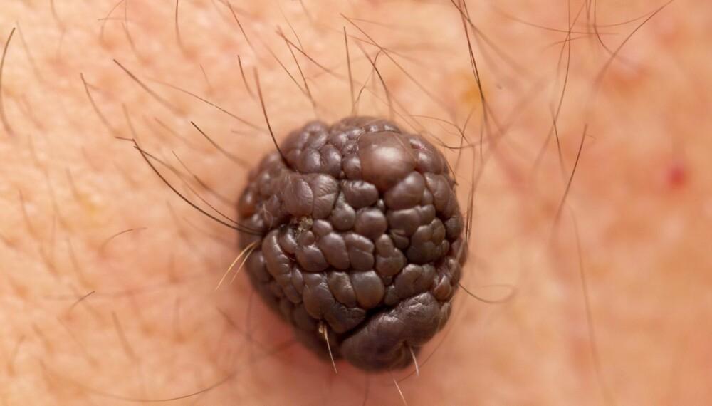 KREFT PÅ RYGGEN: For menn er det vanligst å få føflekkreft på ryggen.