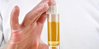 HELSESJEKK PÅ BADET: Urinen din kan si mye om helsetilstanden. Farge og lukt er noe av det du kan legge merke til selv.