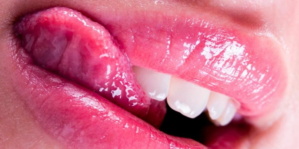 PASS PÅ: Under Herpes-utbrudd kan viruset smitte.