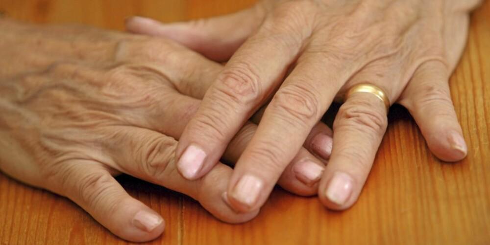 HENDENE AVSLØRER DEG: Hendene dine kan avsløre hvor gammel du egentlig er.