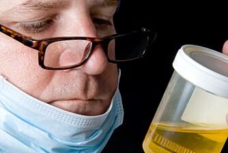 URINPRØVE: En urinprøve kan fortelle mye om helsen din, men da må du utføre den riktig.